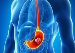 "Cancers:家族史和<font color=""red"">胃癌</font>风险的关系:STOP研究的合并分析"
