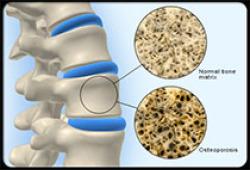 基层医疗机构骨质疏松症诊断和治疗专家共识 (2021)