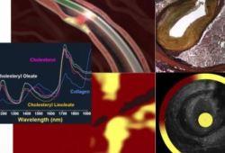 JACC:新型NIRS-IVUS能准确分辨心肌梗死冠脉斑块破裂、侵蚀和钙化风险