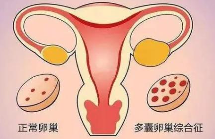 Hum Reprod:吸烟对多囊卵巢综合征妇女妊娠并发症风险的影响