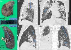 Respirology:COVID-19患者CT表现正常的局部肺组织也可能存在病变