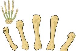 最新!骨质疏松症基层合理用药指南,3分钟get要点!