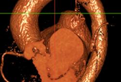 双瓣膜病变伴冠脉高险 | 江西省心血管病医院洪浪院长带领团队顺利完成1例一站式PBMV+TAVR冠脉高风险手术