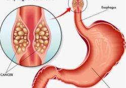 Eur J Cancer:紫杉醇在氟嘧啶和铂类难治性食管鳞癌中的效果明显优于多西他赛 !