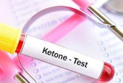 Diabetes Care:警惕!青少年糖尿病患者患致命性酮癥酸中毒的發病率增加