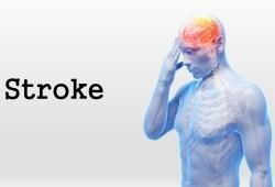 Journal of Stroke:天壇醫院:再發腦中風,到底有哪些危險因素?
