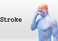 Journal of Stroke:天坛医院:再发脑中风,到底有哪些危险因素?