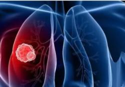 "Cell Death Dis:<font color=""red"">miR</font>-526b-<font color=""red"">3</font><font color=""red"">p</font>抑制肺癌的顺铂耐药和转移"