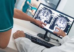 "Alzheimers Dementia:新影像<font color=""red"">评分</font>,助力认知能力预测"