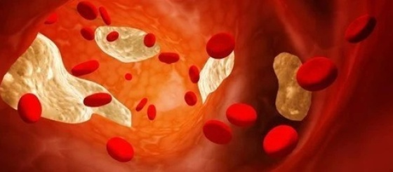 Science揭秘:这种胆固醇,让肝脏疾病有救了!