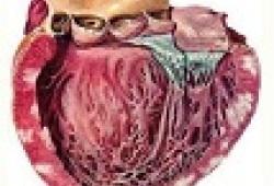 JACC:左心室心肌不紧合患者的临床心血管事件风险的预测