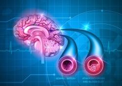 "Neurology:人工智能跨学科突破:无<font color=""red"">症状</font>的脑<font color=""red"">血管</font>病变,可有效预测未来脑卒中"