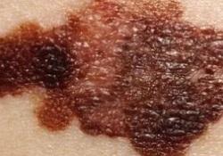 """Clin <font color=""""red"""">Cancer</font> Res:肿瘤浸润B细胞可预测采用达拉非尼+曲美替尼治疗的黑色素瘤患者的临床预后"""