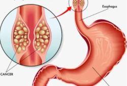 Gastroenterology:颠覆!T1bN0M期食管鳞癌患者采用放化疗治疗的效果不劣于手术!