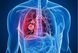 Nat Commun:Smad4缺失抑制PAK3表达并促进侵袭性肺癌的转移