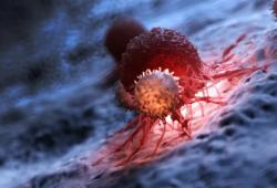 Br J Cancer:血浆ctDNA检测转移性黑色素瘤患者的临床进展分析