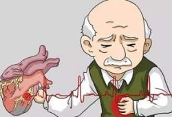 Circulation:心绞痛在稳定型冠状动脉疾病患者中的发生情况及对其预后的预测意义