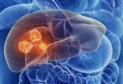 Nat Cancer:新輔助治療藥物卡博替尼和納武單抗治療局部晚期肝細胞癌