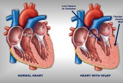 JAMA:住院前后护理质量干预措施对HFrEF心力衰竭患者临床结果的影响