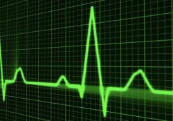 JAMA Netw Open:不同种族/民族心脏骤停发生率不同