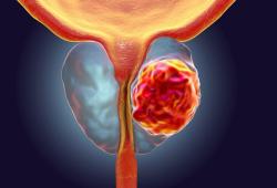 Eur J Cancer:Darolutamide可顯著改善非轉移性去勢抵抗性前列腺癌患者的健康相關生活質量