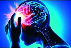 Journal of stroke-脑中风取栓后,行纤维蛋白酶辅助治疗, 安全性和有效性如何?