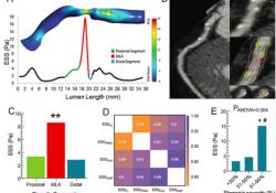 "Radiology:内皮剪切应力与冠状动脉<font color=""red"">CTA</font>斑块特征及PET血管舒张功能的关系"