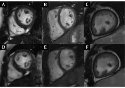 "Radiology:深度学习,让快速心脏<font color=""red"">MRI</font>成为可能!"