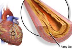 EHJ:孰优孰略?冠脉三支病变或左主干病变患者介入与开胸手术的比较