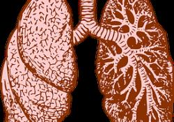 """<font color=""""red"""">良性</font>形态肺结节有增大,考虑什么?"""