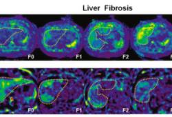 "Radiology:三维MR弹性成像,做到慢性肝炎患者的""一站式""检查!"