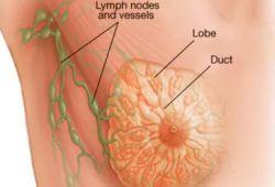 Nutrients:近年来绝经后乳腺癌患者化疗期间的代谢变化