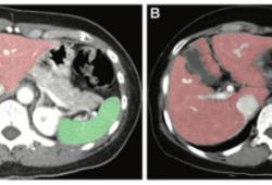 Radiology:健康个体和病毒性肝炎患者肝脏和脾脏体积的个性化参考区间