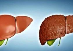 "BMC Gastroenterology:肝硬化患者住院期间出现<font color=""red"">低血糖</font>会严重影响疾病的预后"
