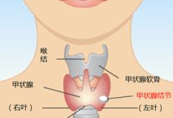 甲状腺有结节到底需不需要手术?别着急,我们一起来学习一下