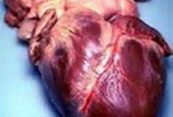 Eur Heart J:1型和2型心肌梗死危险因素比较!