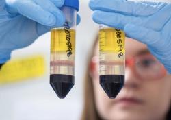 Noxopharm的临床前数据进一步支持Idronoxil在新冠肺炎治疗中的抗炎作用