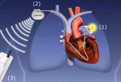Lancet:血流动力学指导下的心力衰竭管理,或许并不能降低死亡率