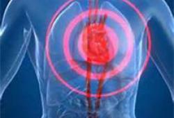 Circulation:秋水仙碱对急性心肌损伤的影响