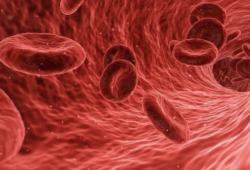 专家共识解读:连续性血液净化治疗新生儿急性肾损伤