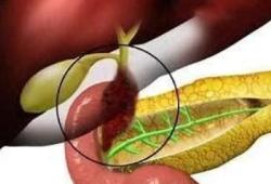 Lancet Oncol:帕妥珠单抗+曲妥珠单抗治疗HER2阳性转移性胆道癌的疗效和安全性