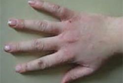 中国手部湿疹诊疗专家共识(2021版)