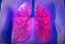 通过胸部CT,能够猜出患者接触史