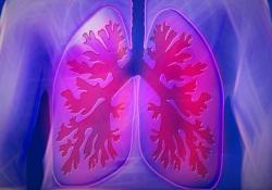 """通过胸部<font color=""""red"""">CT</font>,能够猜出患者接触史"""
