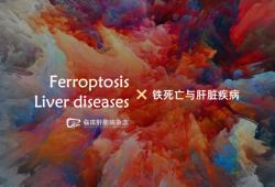 综述:铁死亡与肝脏疾病