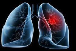 Cancers:EGFR突变转移性非小细胞肺癌患者二线治疗后的生存情况
