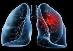"Cancers:<font color=""red"">EGFR</font>突变转移性非小细胞肺癌患者二线治疗后的生存情况"
