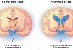 Mov Disord-随访十年,亨廷顿患者的运动,认知和影像学如何变化?