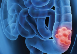 """Pillar Biosciences的oncoRevealTM Dx肺癌和<font color=""""red"""">结肠</font><font color=""""red"""">癌</font>NGS检测试剂盒获得FDA的上市前核准"""
