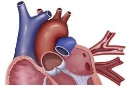 JACC:经导管肺动脉瓣置换术后心内膜炎的发生率、危险因素及预后